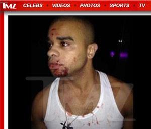 Raz-B após a agressão sofrida em clube chinês (Foto: Reprodução/TMZ)