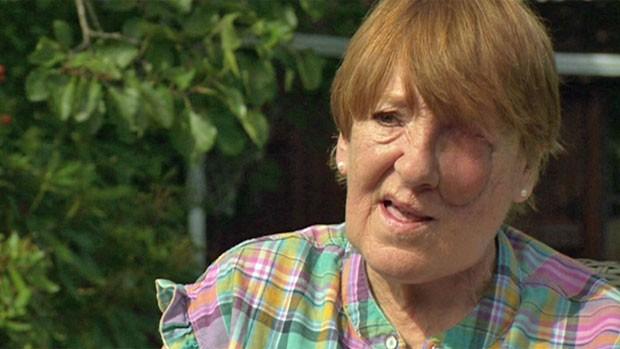 Mulher tem face reconstruída em 3D depois de enfrentar grave câncer (Foto: BBC)