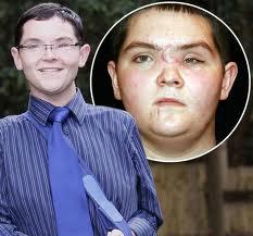 O jovem Steven Thorpe foi declarado morto, mas saiu do coma! (foto: Divulgação)