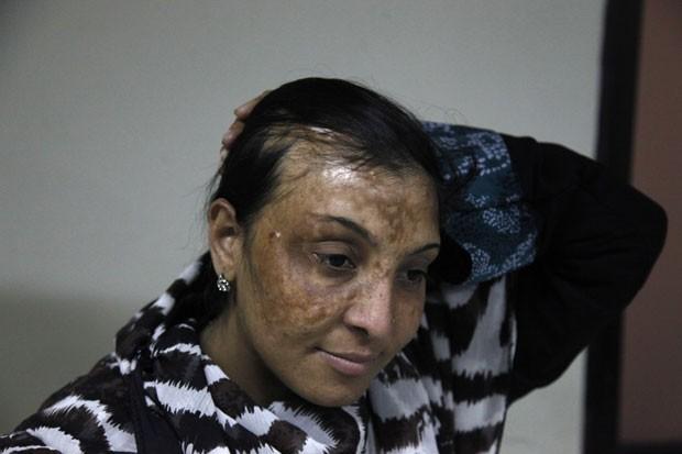 Algumas das vítimas foram atacadas com ácido sulfúrico, que pode ser comprado por baixos valores nas ruas de Karachi. (Foto: Shakil Adil/AP Images for Crown Clinic)