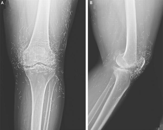 Radiografia revelou centenas de fragmentos de agulhas presos a perna de senhora sul-coreana (Foto: Divulgação/New England Journal of Medicine)