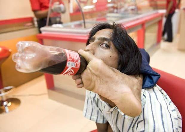 Vijay Sharma, de 27 anos, é o homem mais flexível da Índia. Ele consegue dobrar a perna em até 180 graus, para frente e para trás. Por causa de sua incrível flexibilidade, Sharma, que mora no estado indiano de Rajasthan, chega a girar a perna sobre a cabe (Foto: Barcroft Media/Getty Images)