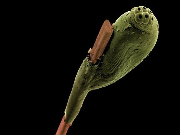 O prêmio fotográfico Wellcome Image Awards anunciou seus finalistas do ano, que produziram imagens impressionantes - entre elas este ovo de piolho, preso a um fio de cabelo, fotografado por Kevin Mackenzie, da Universidade de Aberdeen (Foto: Kevin Mackenzie, University of Aberdeen/Wellcome Images/BBC)