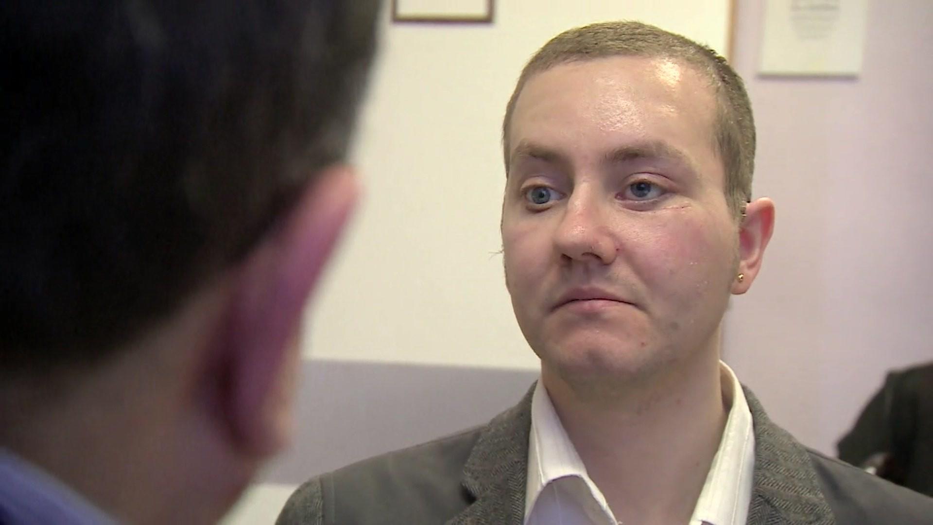 Stephen Power, 29 anos, ficou com rosto desfigurado após acidente com motocicleta. A cirurgia de reconstrução da face contou com implantes feitos em impressoras 3D (Foto: Reprodução/BBC)
