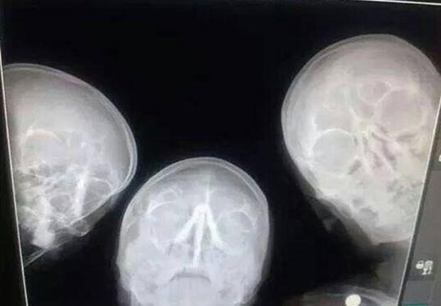 Trio de radiologistas inovou ao tirar selfie em máquina de raio-X (Foto: Reprodução/Imgur/FunStorm1)